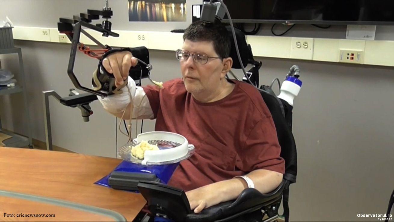 Proteza experimentala care inlocuieste conexiunile pierdute intre creier si muschi