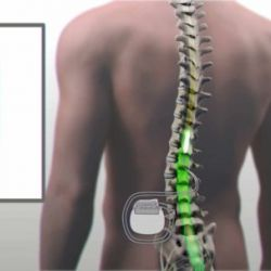 Un barbat paralizat isi misca picioarele datorita unei proceduri care stimuleaza maduva spinarii