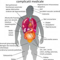 Riscul aparitiei cancerului de san are legatura mai mult cu grasimea de la nivelul intregului corp
