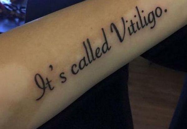 Si a tatuat numele bolii de care sufera